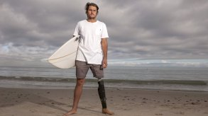 أسترالي يحتفظ بسن قرش أبيض التهم ساقه