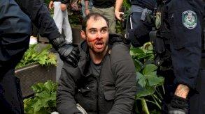 فيروس كورونا: اعتقال العشرات في احتجاجات ضد الإغلاق في أستراليا