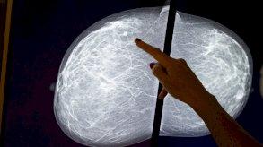 علماء أستراليون يكتشفون نقطة ضعف سرطان الثدي